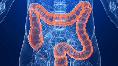 Photo of أنواع القولون وطرق علاجه